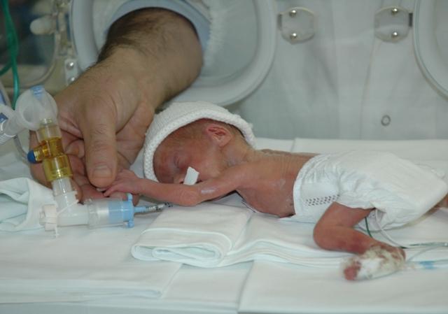 Chi è il neonato pretermine